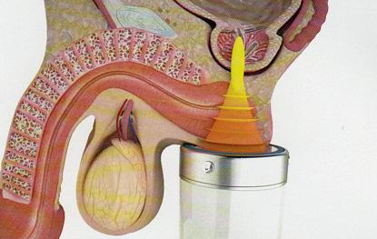 penis verkalkung